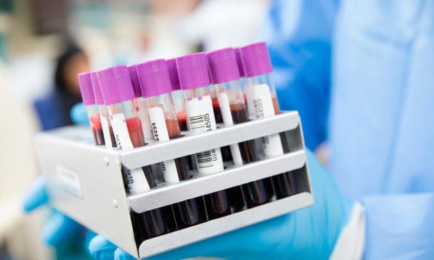 Fundación Unicaja e IBIMA presentan avances en un estudio que predice la respuesta de pacientes con cáncer a la inmunoterapia